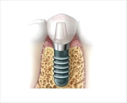 第二の永久歯