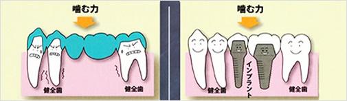 歯が中間で2本抜けた場合