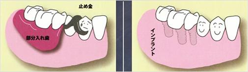 歯が数本抜けた場合